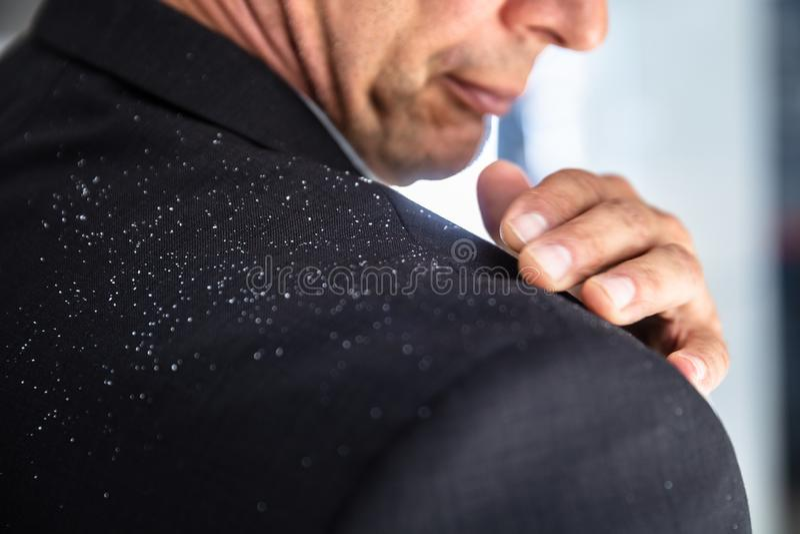 Businessman Brushing Off Fallen Dandruff On Shoulder. Close-up Of A Businessman`s Hand Brushing Off Fallen Dandruff On Shoulder royalty free stock images