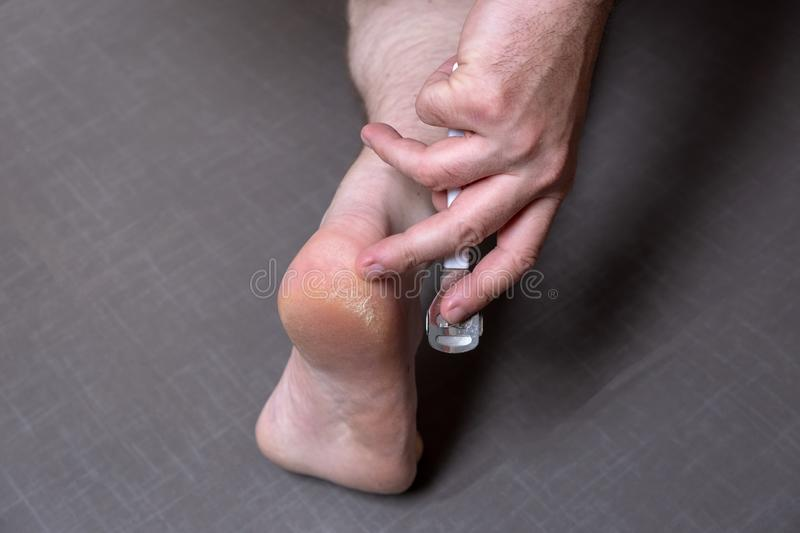 Close up of caucasian male dehydrated skin on the heels, trating callus, corn with scraper file royalty free stock images