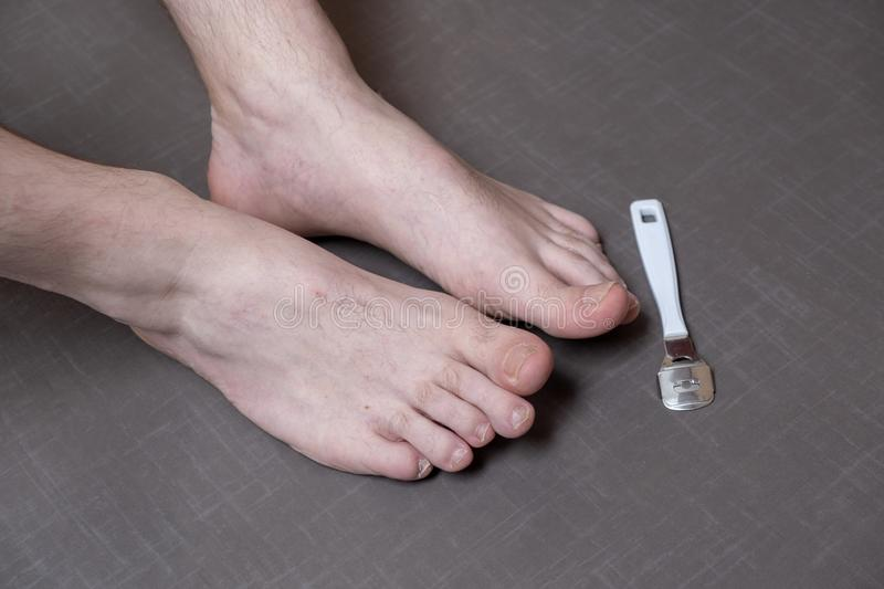 Close up of caucasian male dehydrated skin on the heels, trating callus, corn with scraper file stock photo