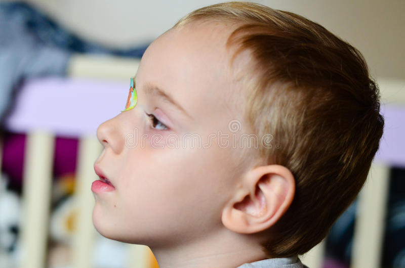 Close up of child`s eyelash. And eyepatch for a correction of the vision of the other eye stock images