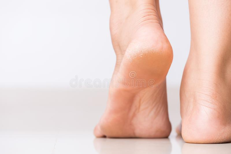 Close up of Cracks on Heels with bad skin covered. Healthcare and medical concept stock photos