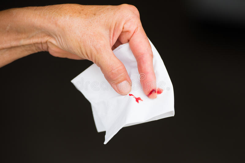 Close up cut wound bloody finger isolated. Close up of injured, cut bloody finger wound, female hand with white tissue, isolated on dark background, copy space royalty free stock image
