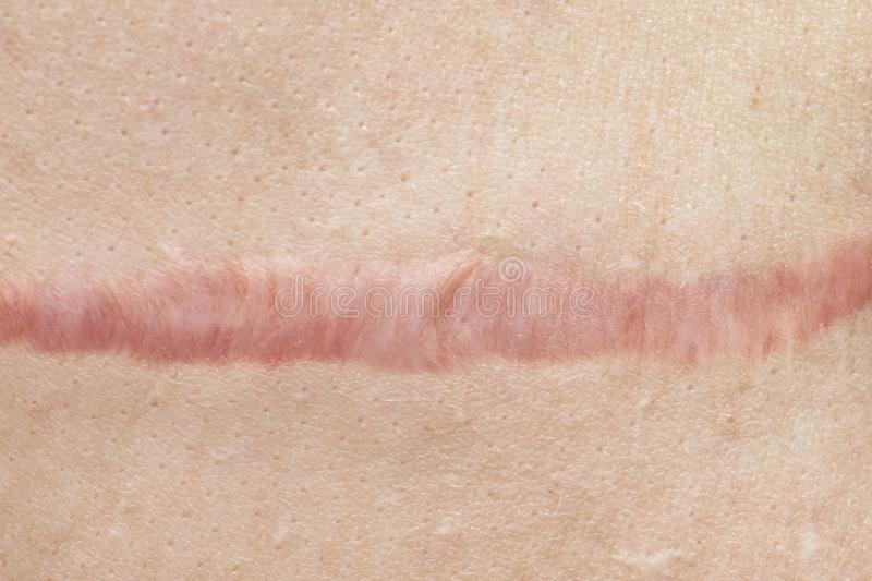 Close up of cyanotic keloid scar caused by surgery and suturing, skin imperfections or defects. Hypertrophic Scar on skin,. Dermatology and cosmetology concept royalty free stock photography