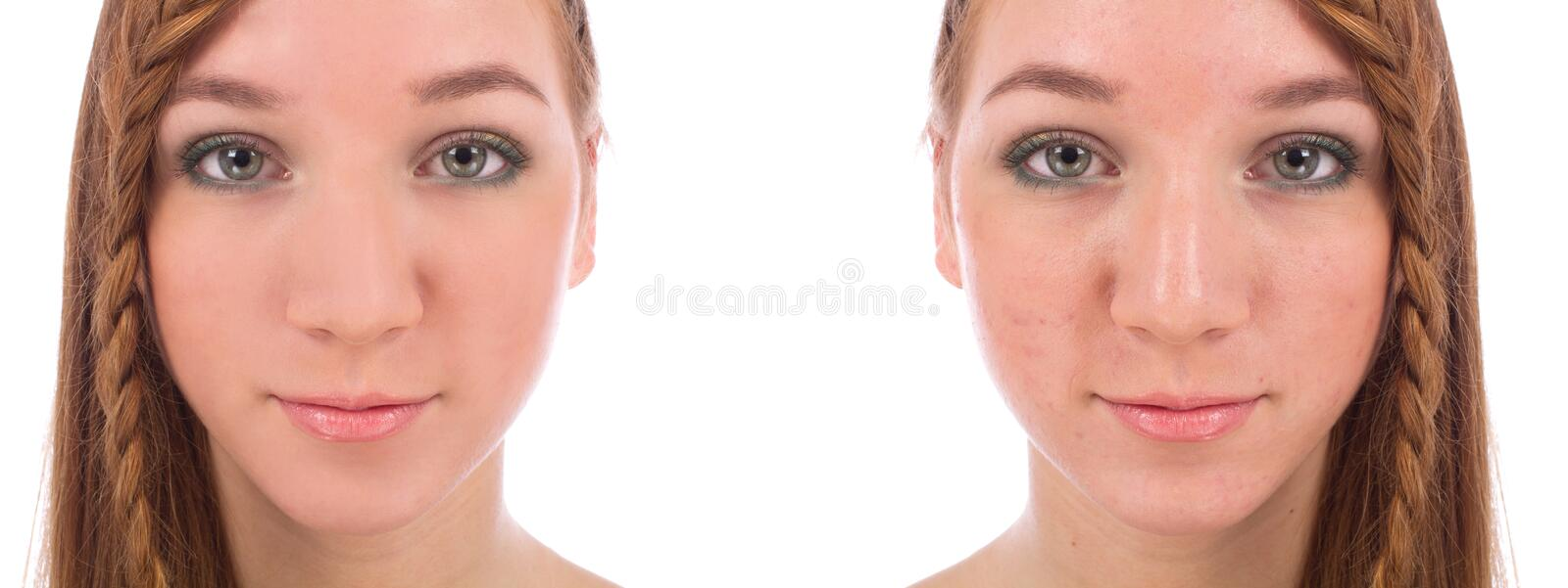 Close-up da cara do adolescente com e sem a acne imagem de stock royalty free