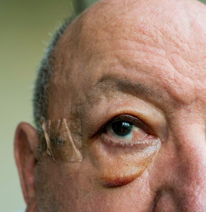 Close-up da cara idosa do homem com o edema após a cirurgia foto de stock