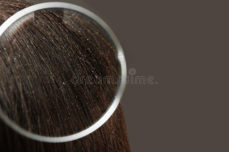 Close up da mulher com a caspa em seu cabelo no fundo cinzento, vista através da lupa fotografia de stock