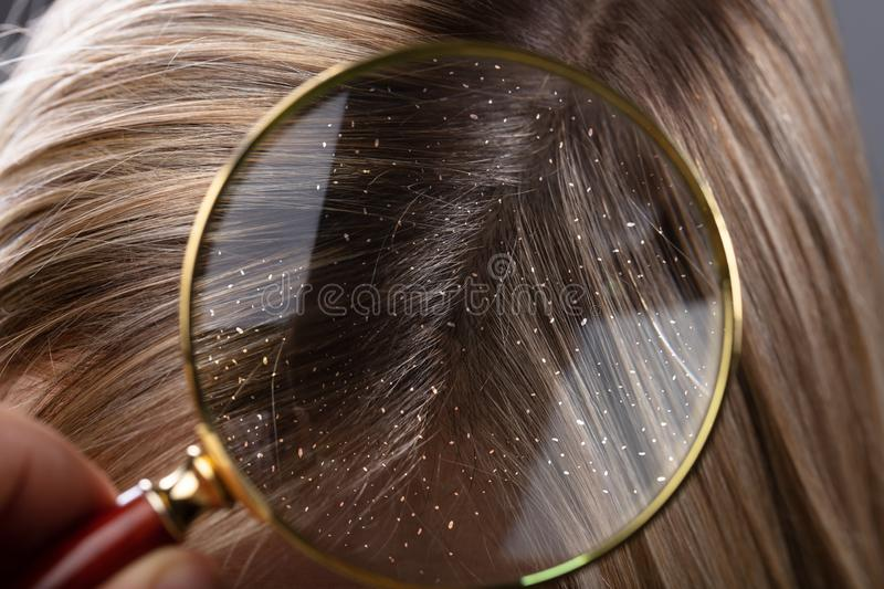 Dandruff In Hair Seen Through Magnifying Glass. Close-up Of A Dandruff In Blonde Hair Seen Through Magnifying Glass royalty free stock image