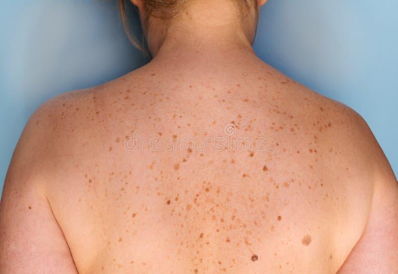 Close up das sardas na parte traseira Pigmentação e lote das marcas de nascença Problemas da toupeira da pele imagens de stock