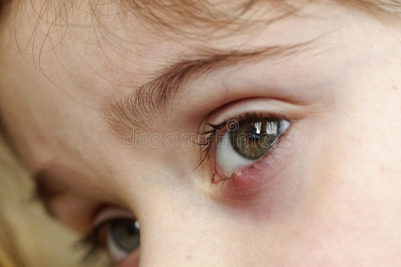 Close-up de um chiqueiro do olho do ` s da criança Doença oftálmico do hordeolum fotos de stock