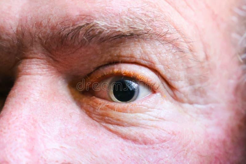Close up de um globo ocular dilatado imagem de stock royalty free