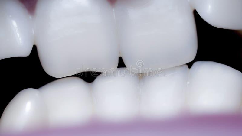Close-up de uma boca com dentes curvados e malocclusion imagens de stock