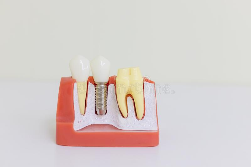 Dental implant model. Tooth human implant. Dental concept. Human teeth or dentures.Implan model tooth support fix bridge stock photo
