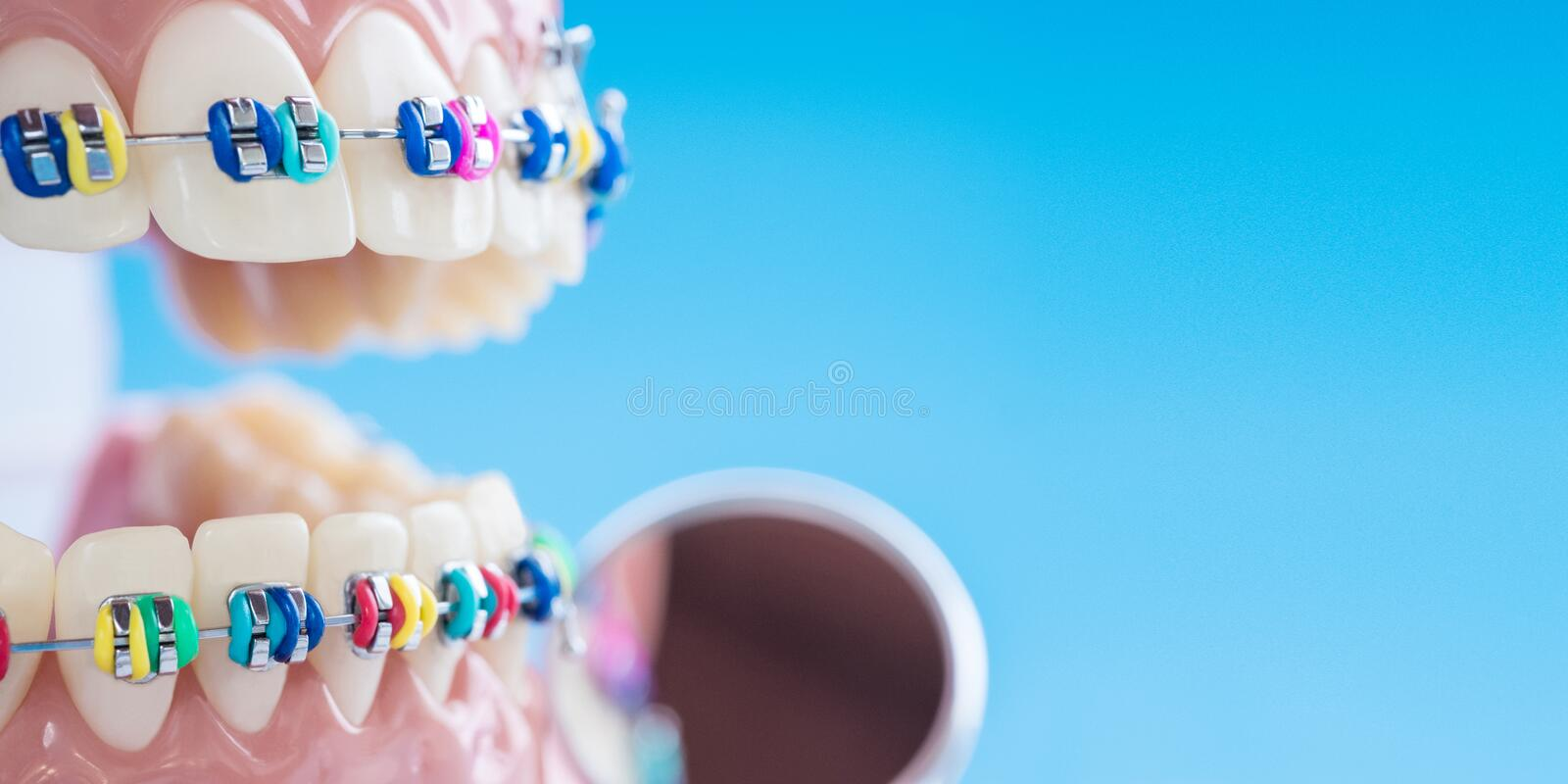 Close up dentist tools and orthodontic model. royalty free stock photography