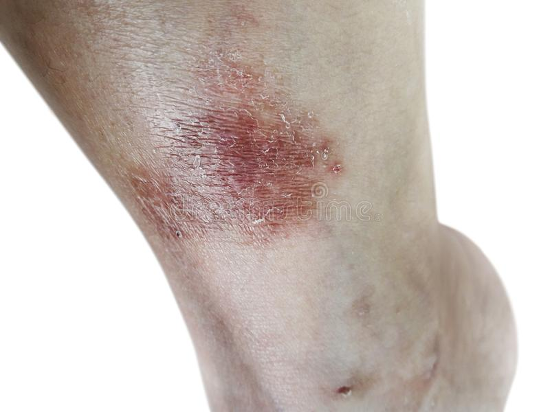 Close up dermatitis on skin, ill allergic rash dermatitis eczema skin of patient , atopic dermatitis symptom skin detail texture , royalty free stock photo