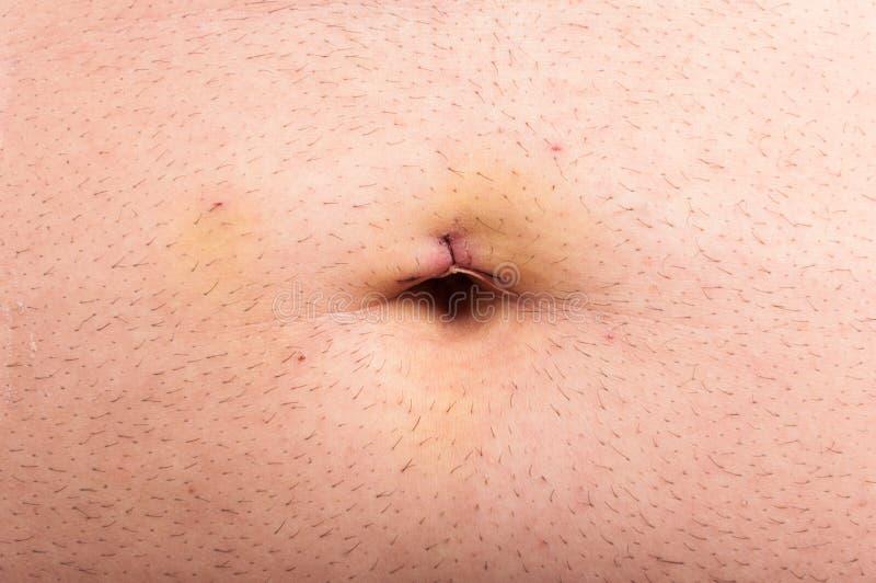 Close up do ponto da barriga após a cirurgia laparoscopic imagem de stock