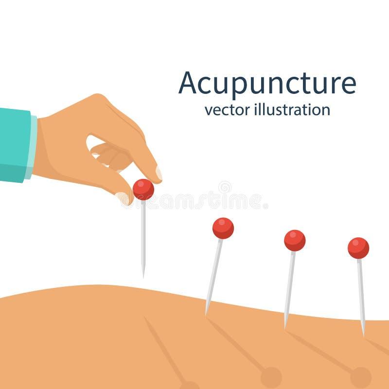 Close up do tratamento da acupuntura ilustração stock