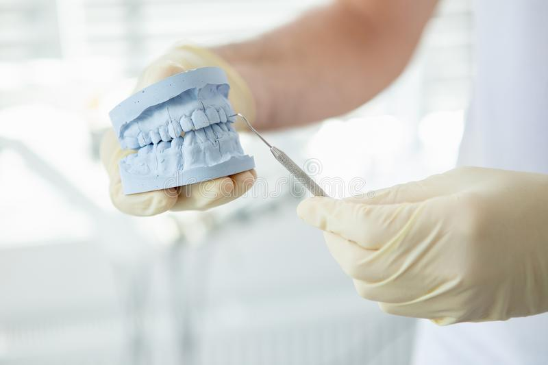 Close up of Doctor showing jaws model in modern dental clinic stock photos