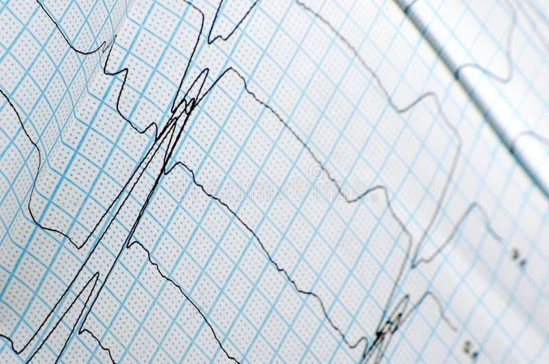 Close-up of ECG graph stock photos