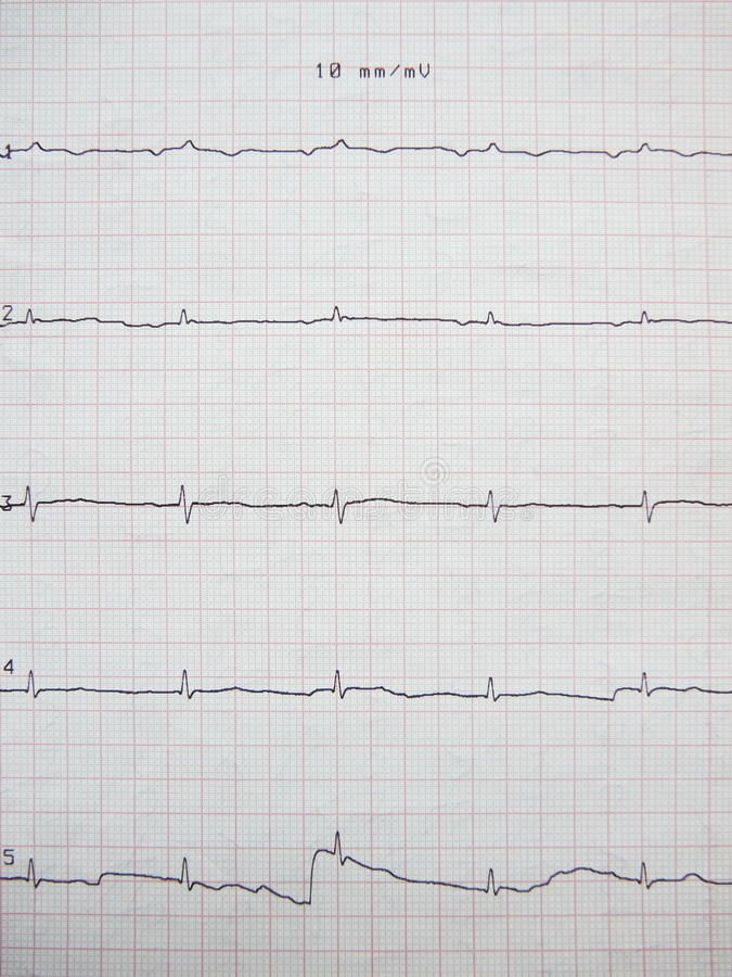 Close up of ECG graph royalty free stock photography