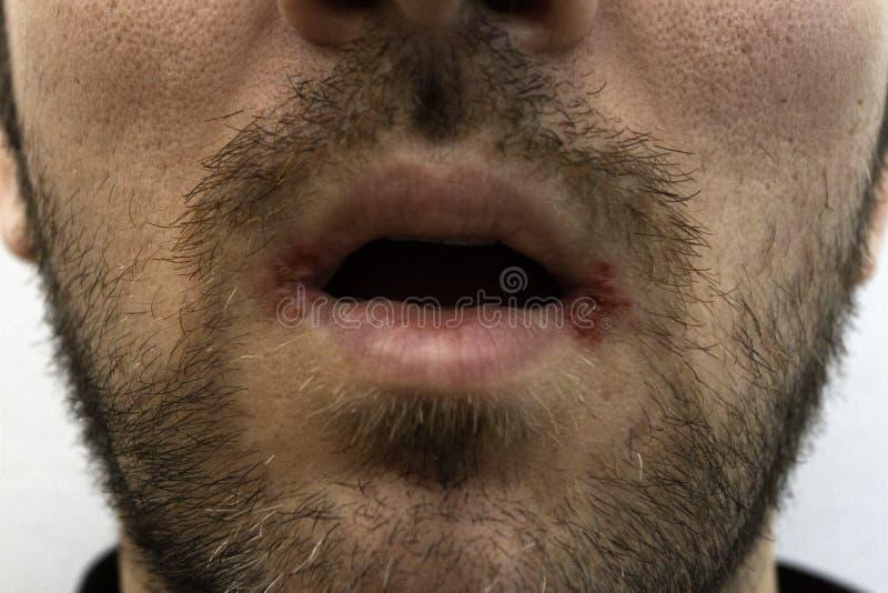 Close-up em um homem com herpes dois oral (palavra simples de herpes) em sua boca foto de stock royalty free