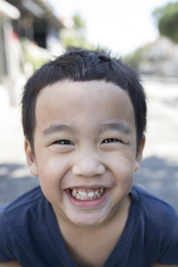 Close up face of asian boy with funny milk tooth stock images
