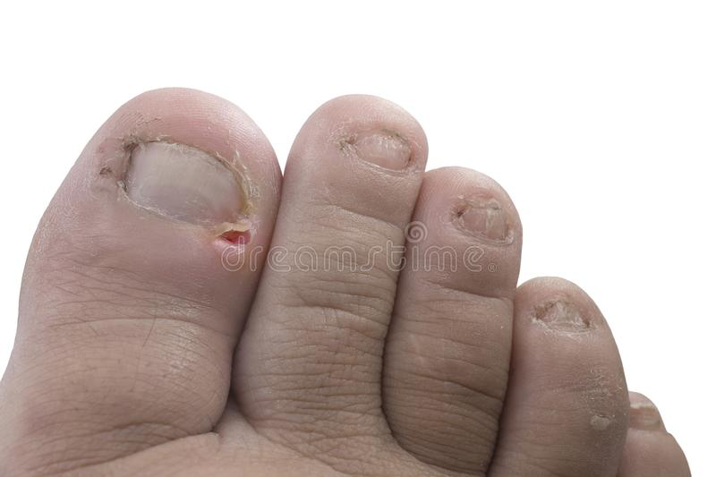 Close up figure out the nail, Accident nail trauma,bleeding toe stock photos