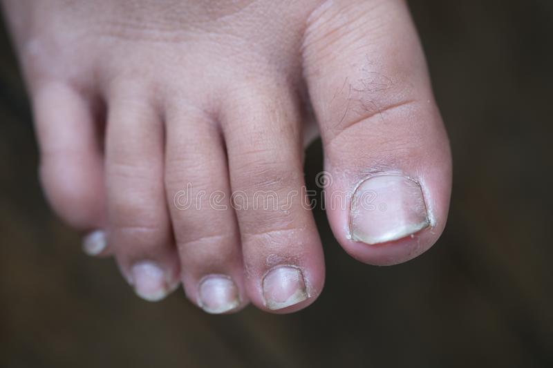 Dirty children finger nails. Dirty finger nails. Close up of fungus infection on nails foot, Selective focus of dirty finger nails royalty free stock photos