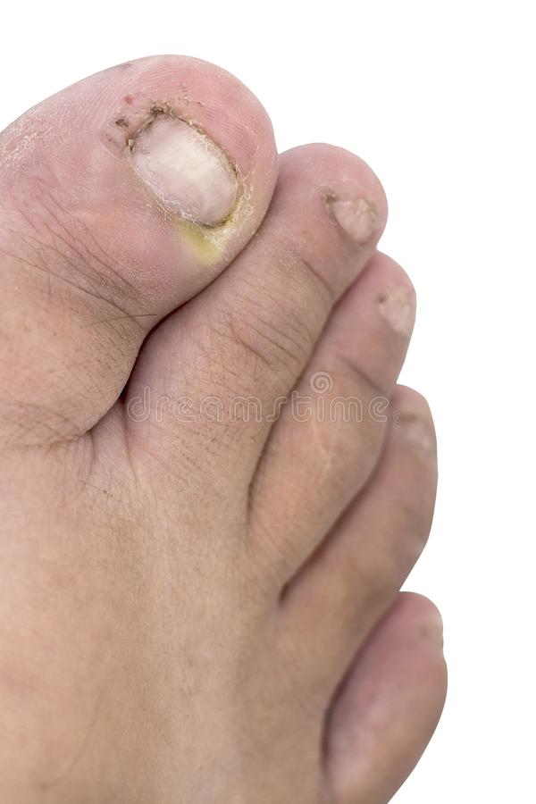Close Up Of Fungus Infection On Nails Foot, Selective Focus Of F ...