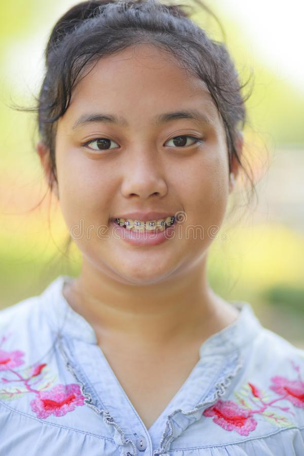 Close up head of asian teen age with braces dental teeth stock photos