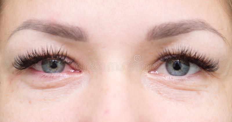 Healthy and irritated eyes. Close up of healthy and irritated red eyes royalty free stock images