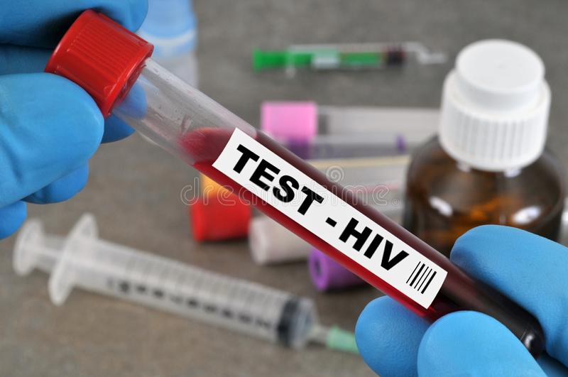 HIV test in close-up. Close-up of an HIV test held by gloved hands royalty free stock photos