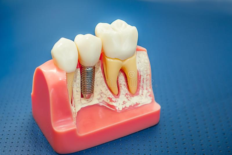 Close up Human tooth implant, crown model. Modern stomatology concept. Selective focus. Space for text stock photos
