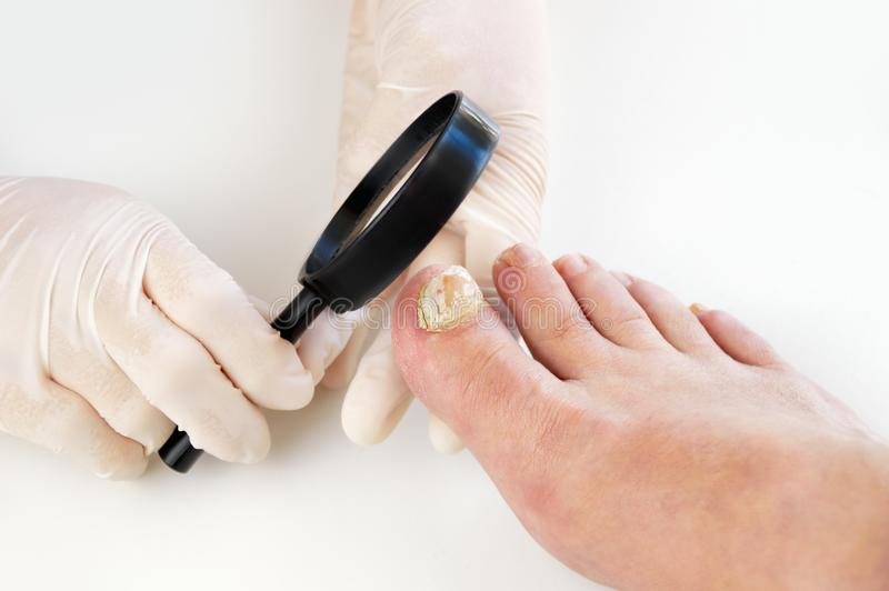 Close up image of left foot toe nail suffering from fungus infection. Checking it with magnifying glass by the medical doctor stock photos