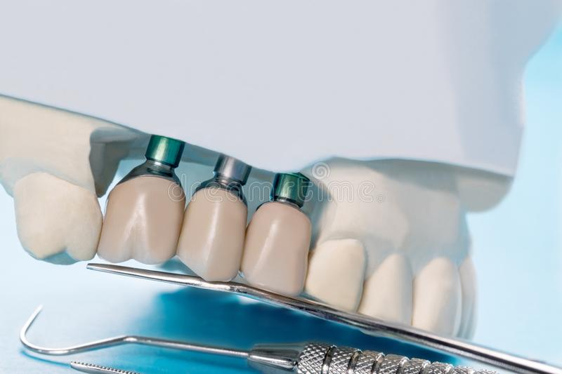 Close up implant and prosthodontic model. Close up Implant model tooth support fix bridge implant and crown stock photography