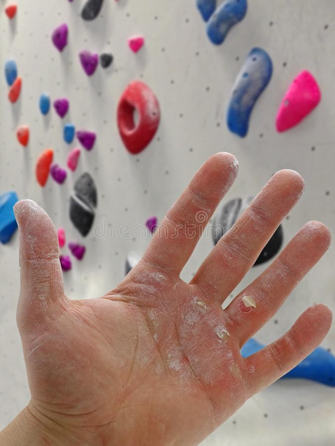 Close up of injured male boulder hand with magnesium in front of boulder wall stock images