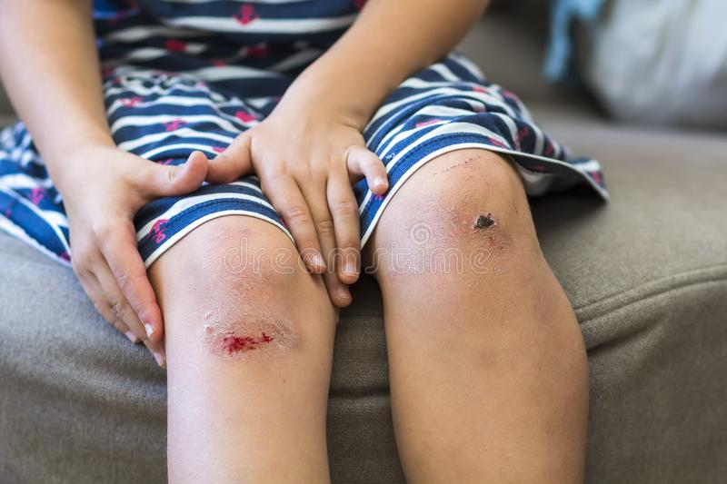 Close-up of little girl holding her bruised injured damaged knee royalty free stock image