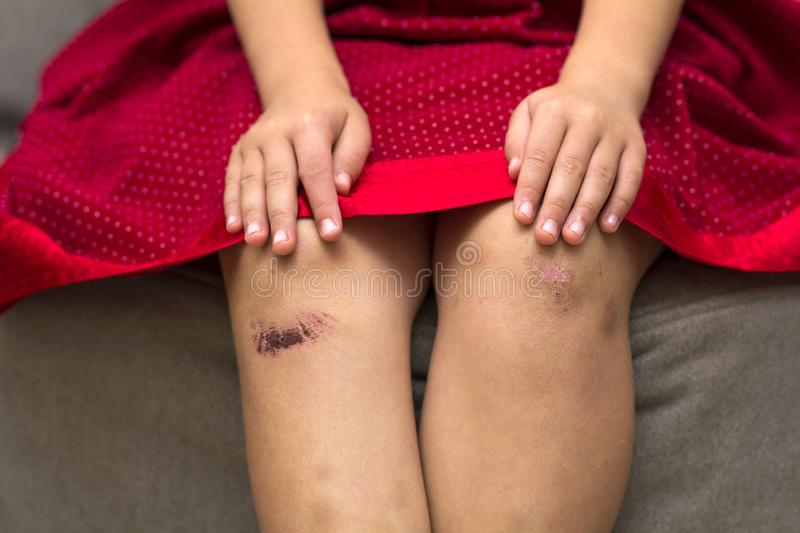 Close-up of little girl holding her bruised injured damaged knee. With her hands royalty free stock photo