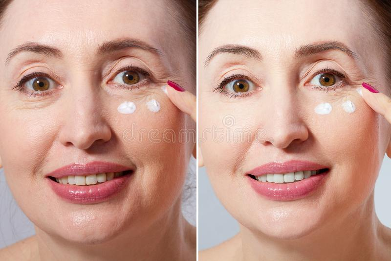 Close-up macro before after portrait of middle aged woman with face cream  on white background. Wrinkles and menopause. stock images