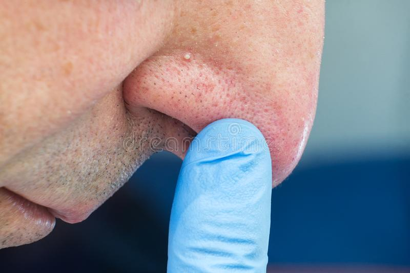 Close up man face with whitehead pimples on nose, acne disease. stock image