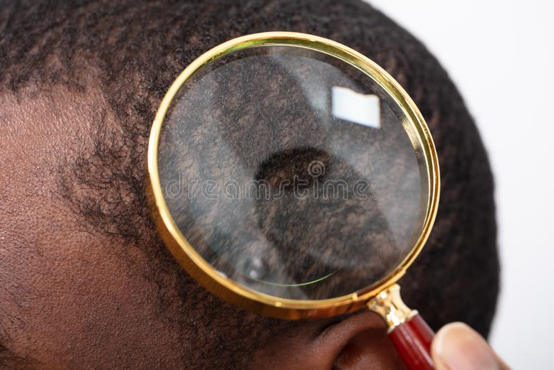 Man`s Hair Seen Through Magnifying Glass royalty free stock photo