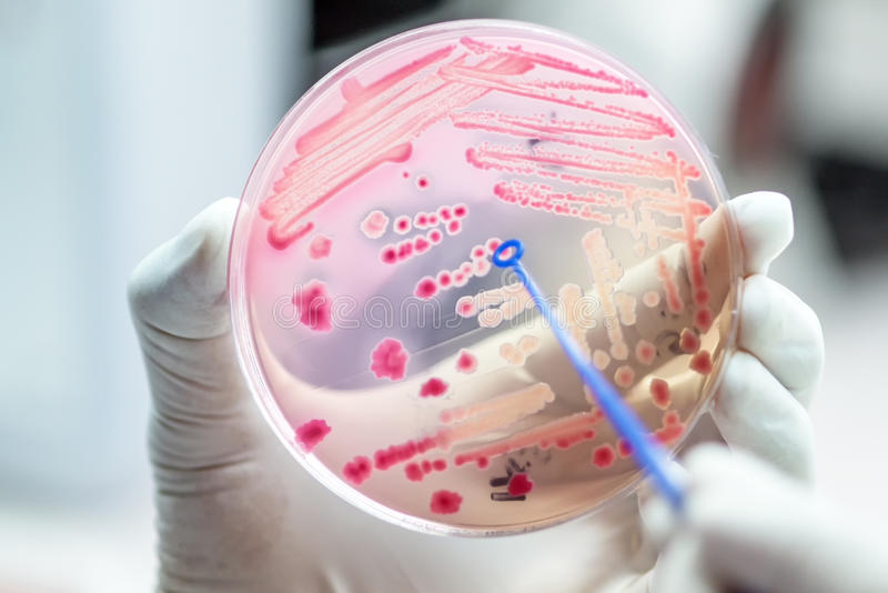 Close up the media plate on hand medical technicians working on. Bacterial culture and drug resistance of pathogens in laboratory stock photos