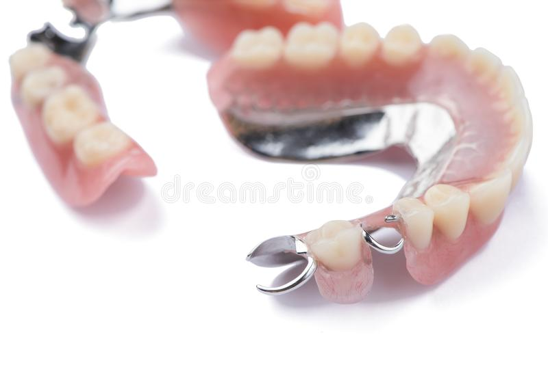 Close-up metal removable partial denture on white background.  stock photography