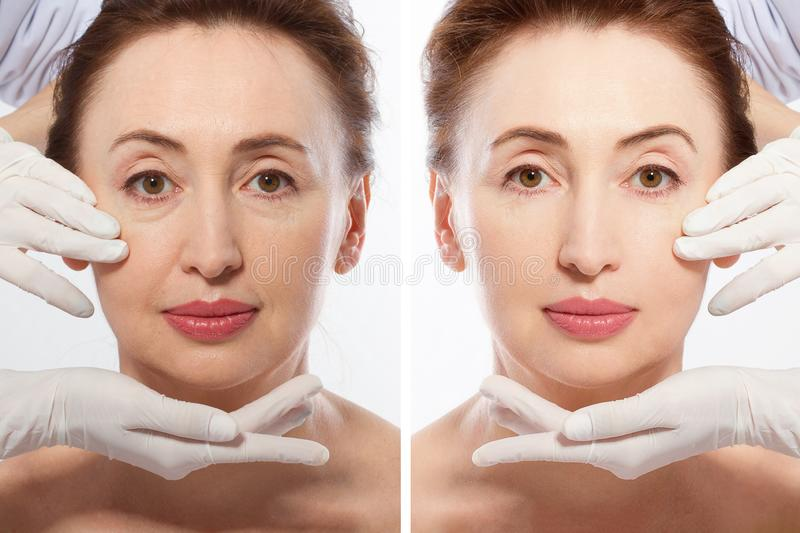Close up middle age woman macro face before after collagen injection. Face lifting, anti aging concept. Plastic surgery, cosmetic royalty free stock photo