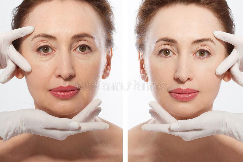 Close up middle age woman macro face before after collagen injection. Face lifting, anti aging concept. Plastic surgery, cosmetic stock images