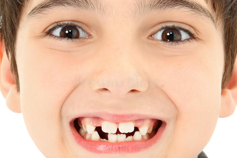 Close Up Missing Teeth. Attractive young boy with missing teeth close up detail royalty free stock photo
