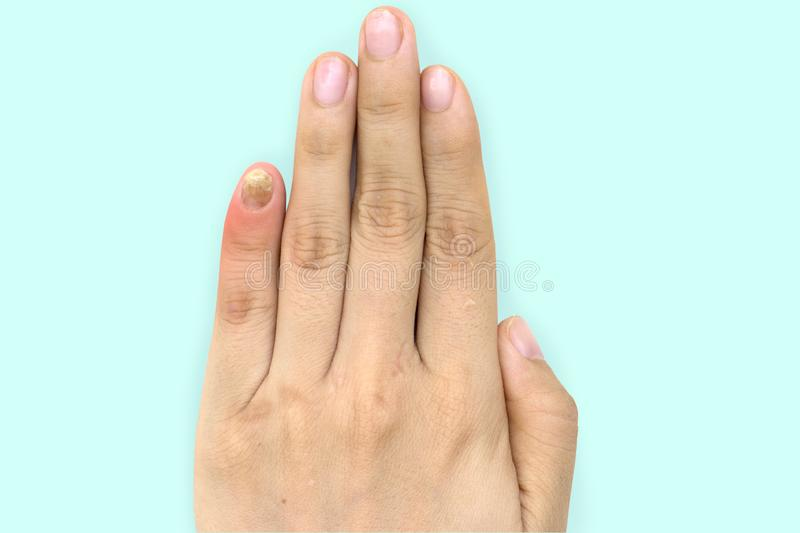 Close up of nail fungus infection on the little finger. Human hand suffering from fungus infection. Onychomycosis with fungal nail royalty free stock photos