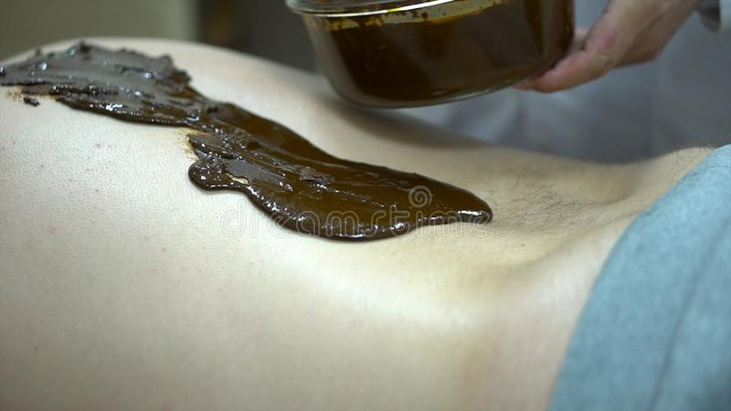 Close up for a patient lying on a bed with hot therapeutic mud on his back, and alternative medicine concept. Close up royalty free stock photography