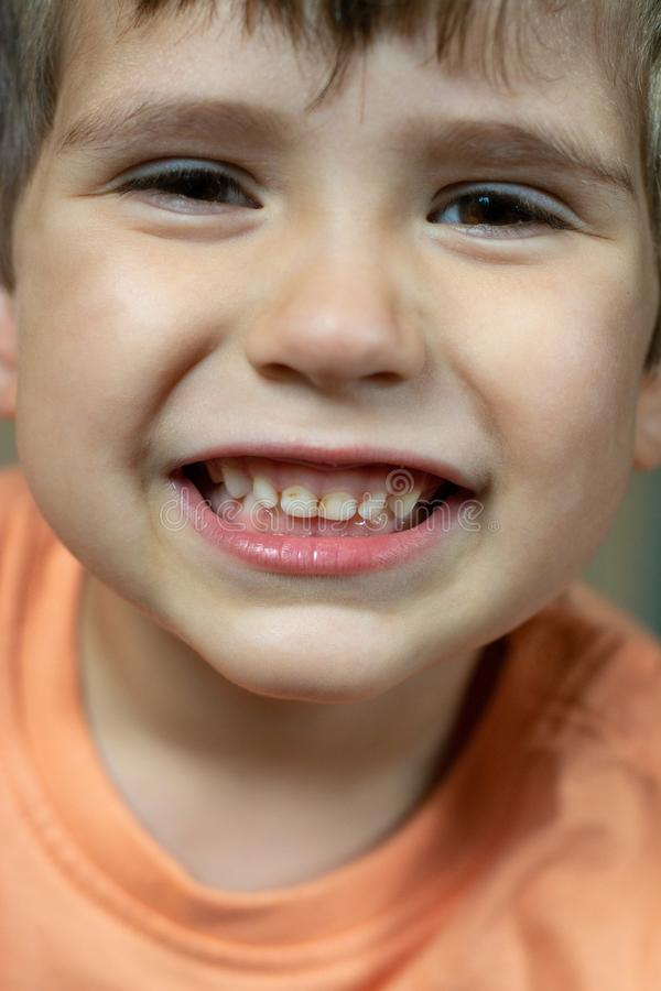 Close up photo of child dental caries. Kid open mouth showing cavities teeth decay. Unhealthy baby teeth stock images