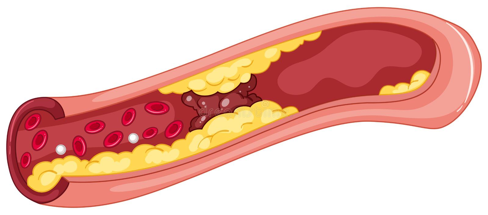 Close up picture of blood clot. Illustration stock illustration