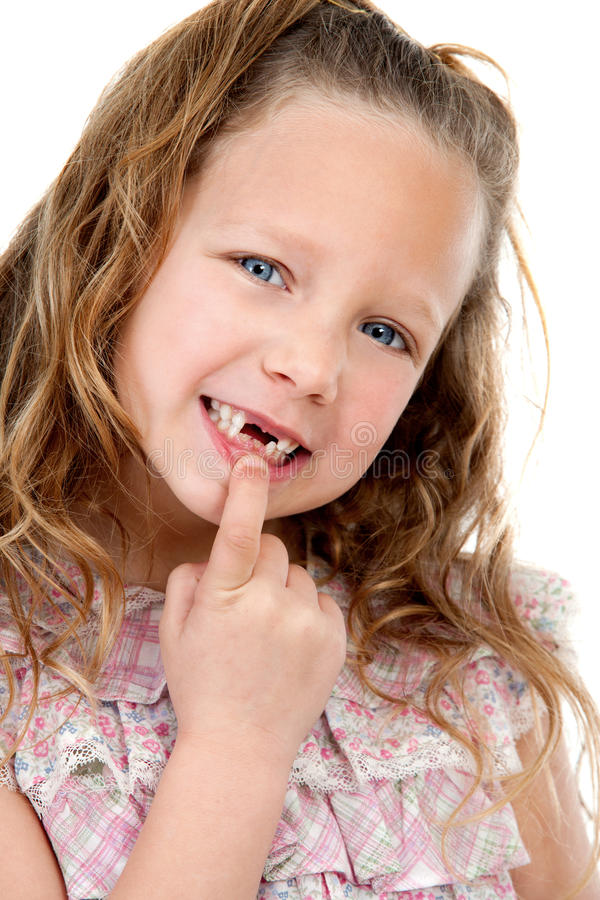 Download Close Up Portrait Of Girl Showing Missing Teeth. Stock Image - Image: 23720917